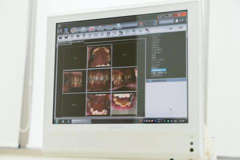 診療チェア用モニター